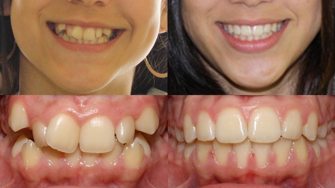 Smile Gallery Andrews Orthodontics Orthodontist San Carlos Ca